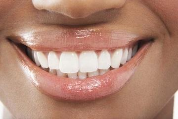 smile with white teeth