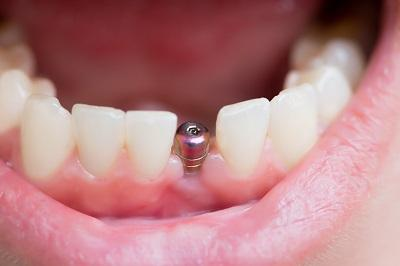 dental implant showing on a lower jaw
