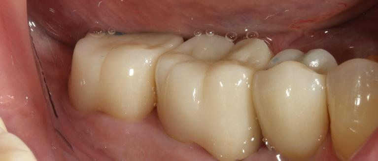 Tooth-Replacement-After-Image