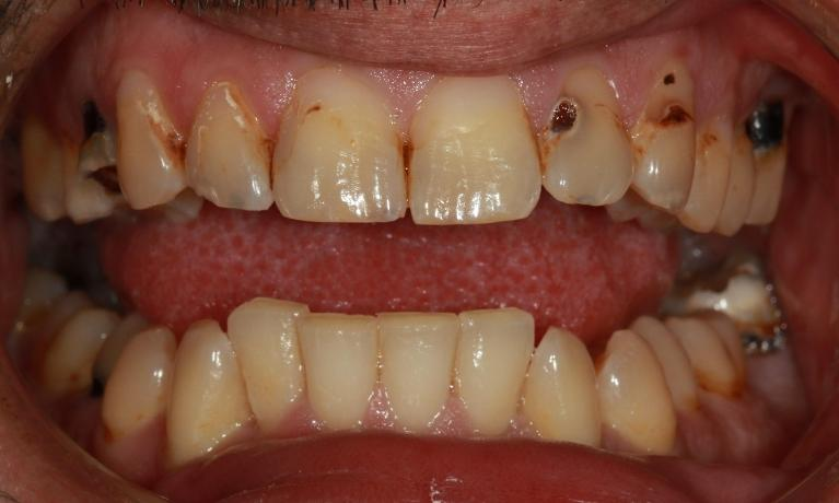Periodontal-Treatment-and-Crowns-Before-Image
